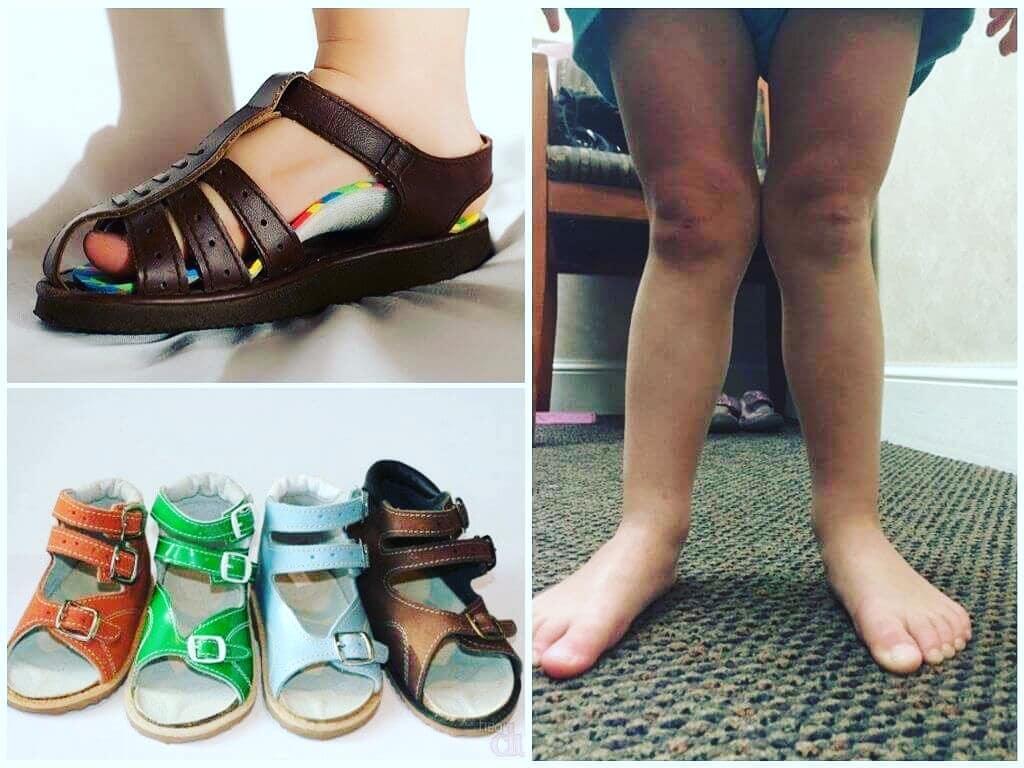 Опубликованы новые цены компенсации за самостоятельно приобретенную ортопедическую обувь АРДИП